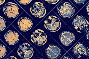 MRI of a brain