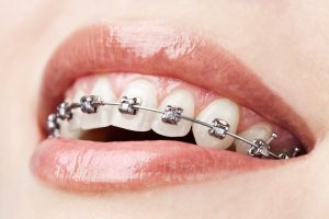 mouth of woman with braces in her teeth