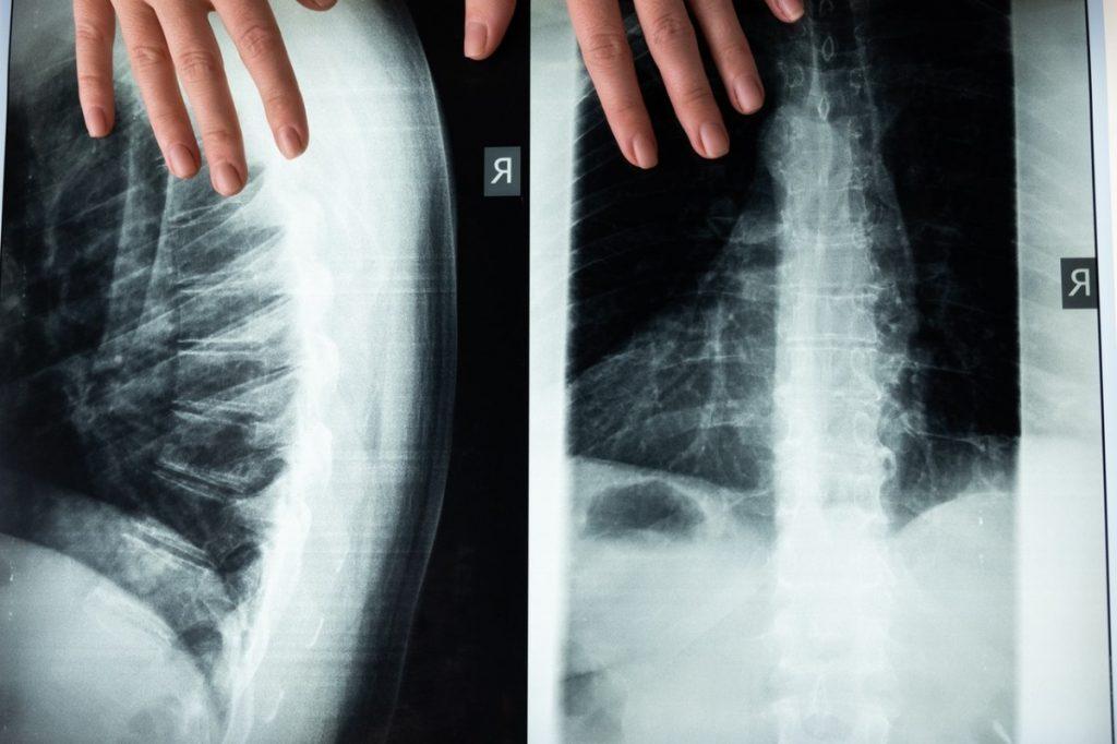 spine xray